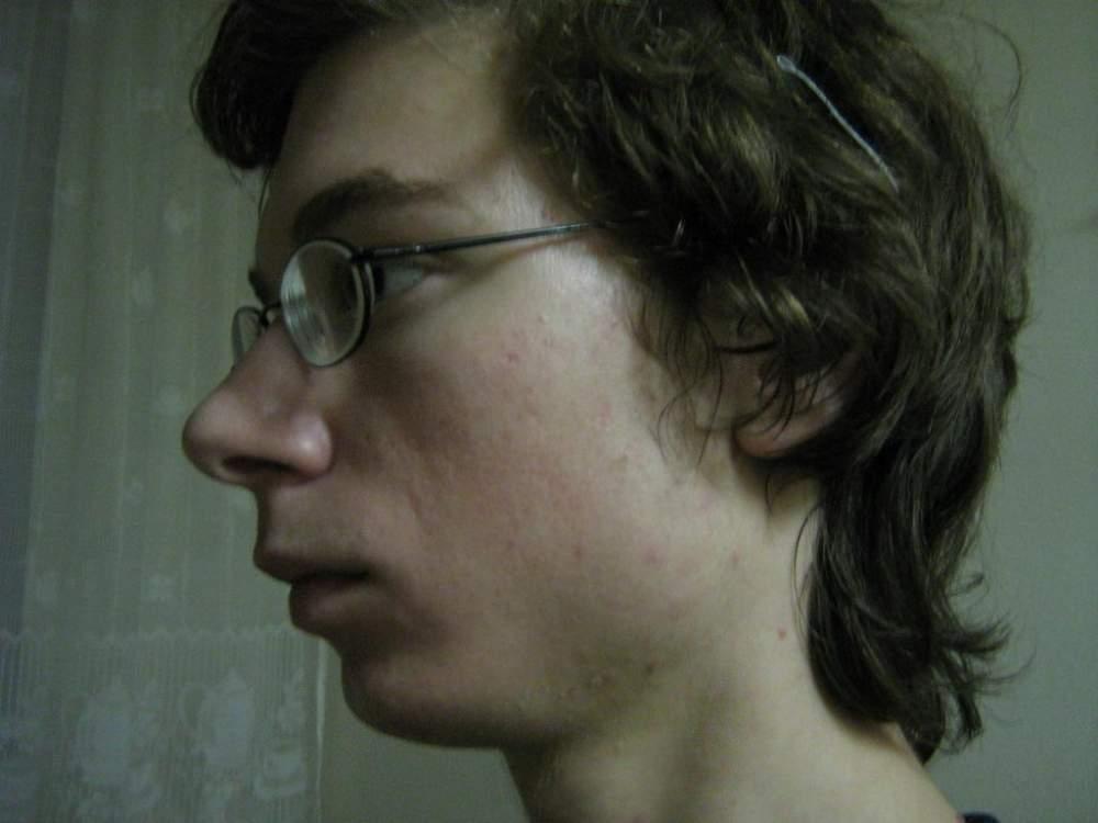 2 months on Locacid (tretinoin)