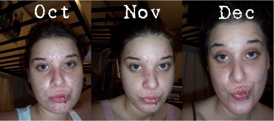 Oct-Dec comparison