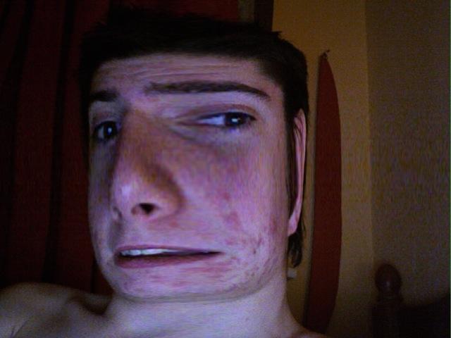 The acne can wait...coz my head has grown!! lol