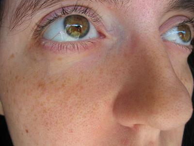 Pores and overall skin quality