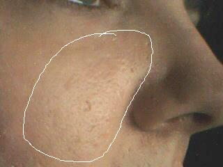 my scars left side