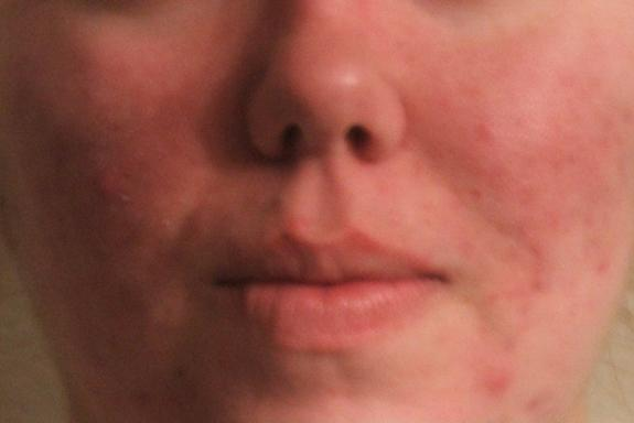 Jessica's Course With Accutane