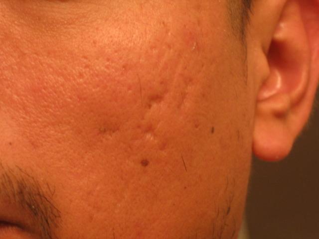 my scars
