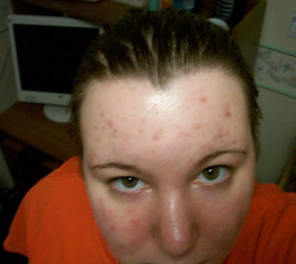 mandy skin care4.jpg