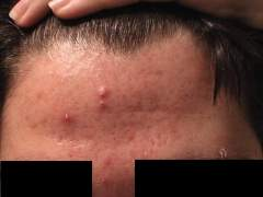 Day 12 -my forehead...