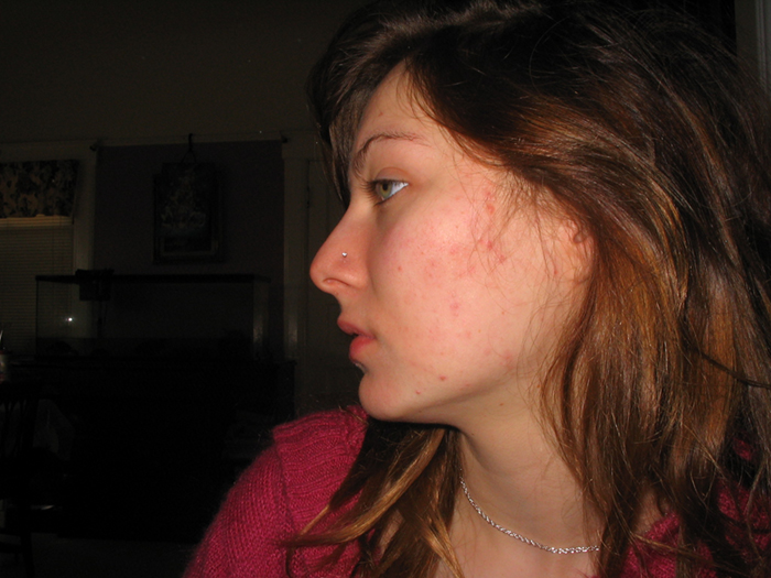 1 month on accutane