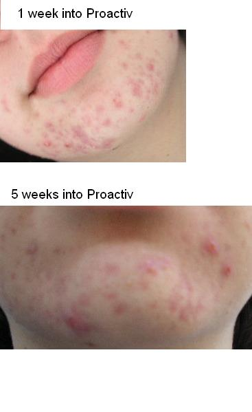 What Proactiv Did to me