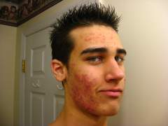 Haircut Accutane day2
