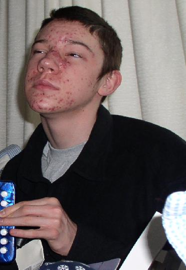 accutane in the army