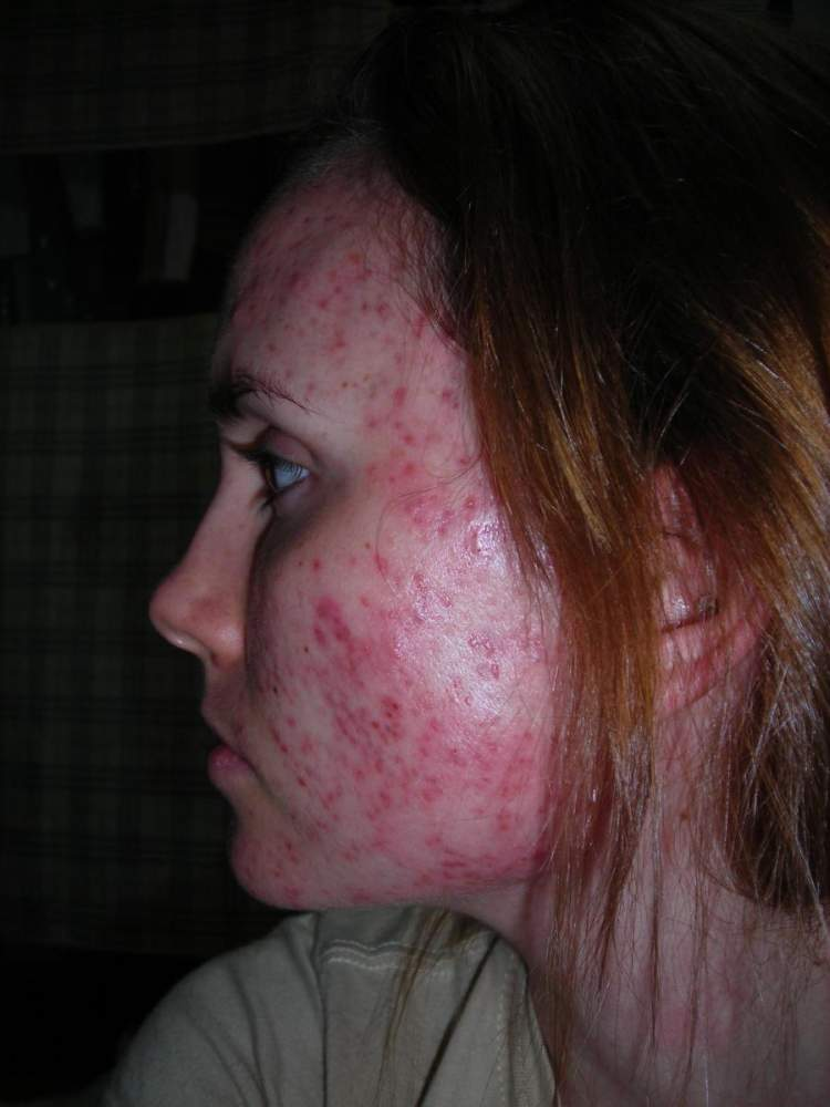 SIde view #2....week one on accutane.