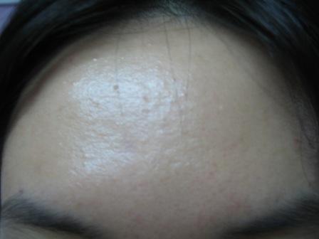 040407 Forehead