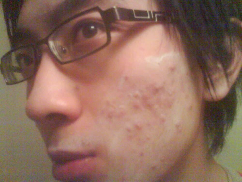 Day 6. With Sudocrem on