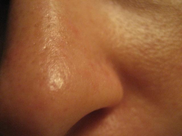 Nose close-up w/ blackheads