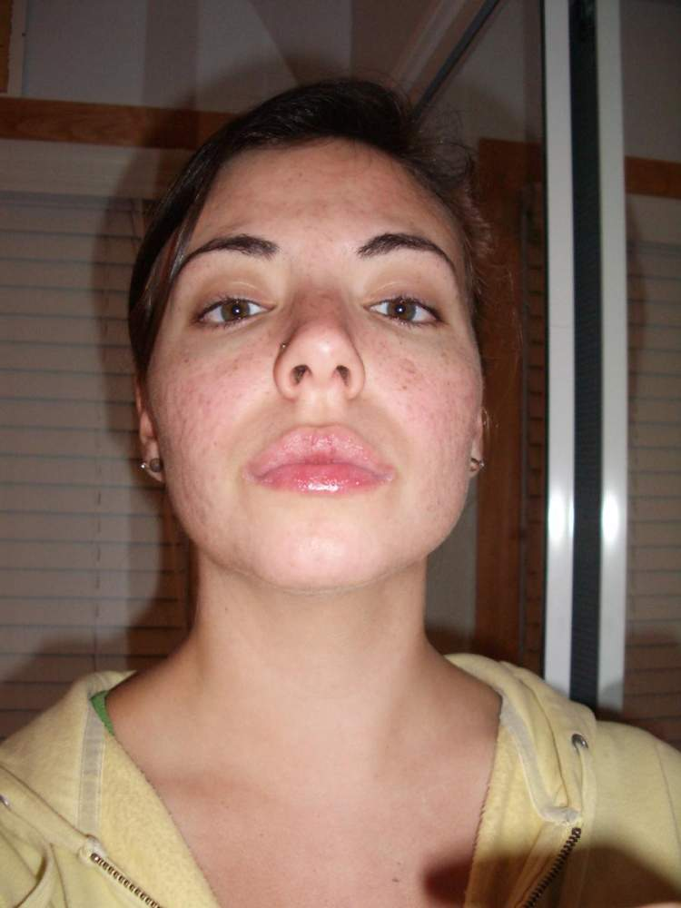 dry lips after stopping accutane
