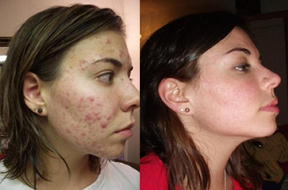 2 Before and After.jpg - Two months left of accutane