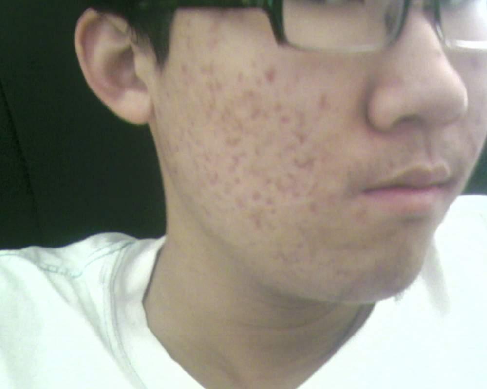 red marks...left after acne