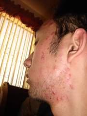 First week on accutane Jan 18 2007