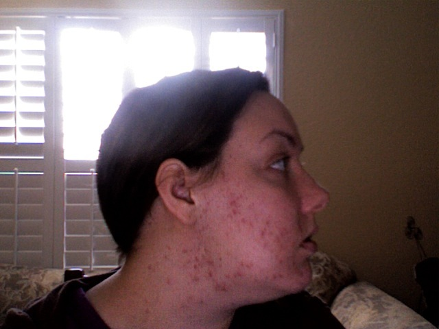 Before Accutane Left Side