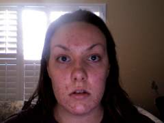 Before Accutane Front View