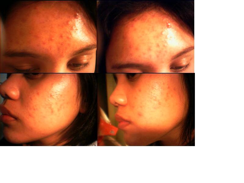 acne acne acne!!