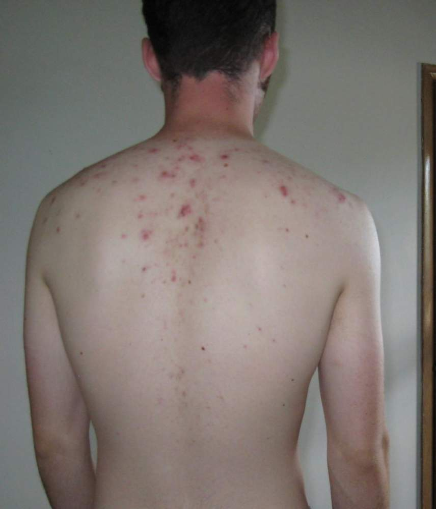 John's skin so far