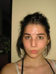 Me One Mounth Latter On Acne Complexe - Still Covered In Acn