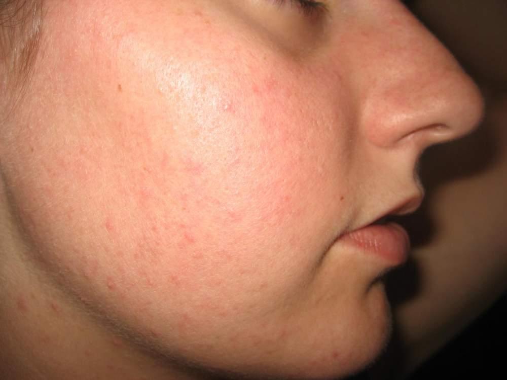 1 month before Accutane - right cheek