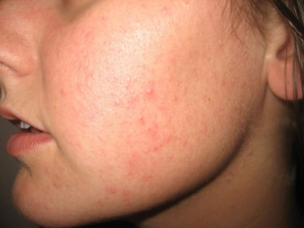 1 month before Accutane - left cheek