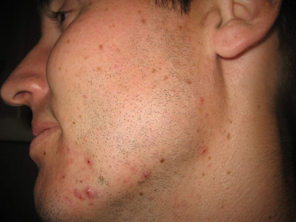 Day 5 of Accutane - left side