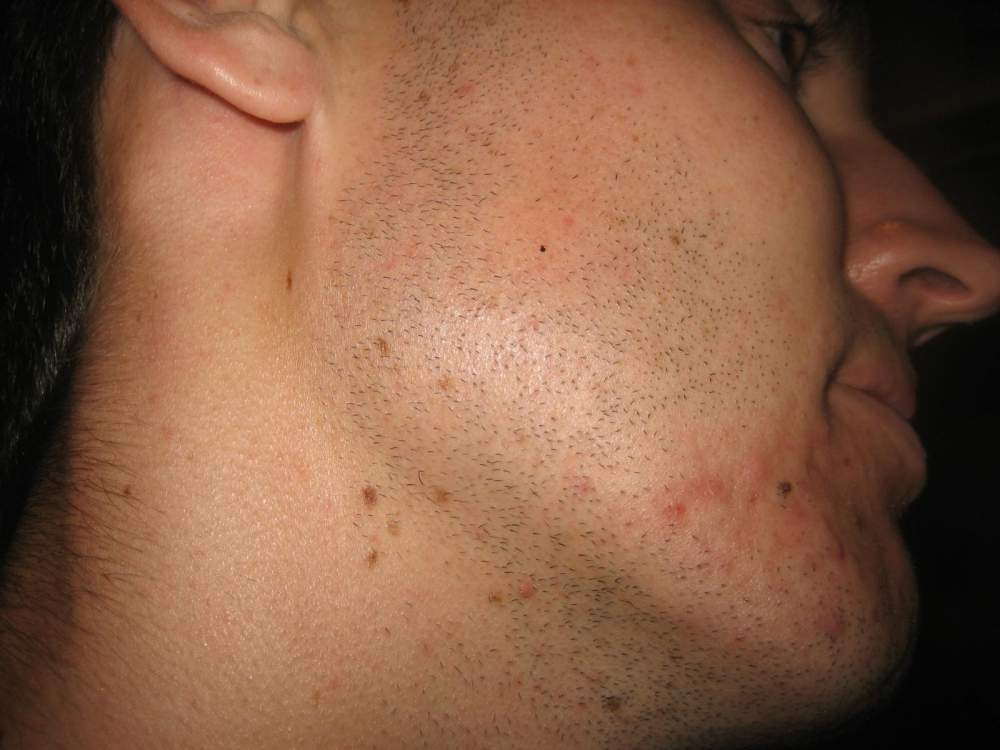 Day 5 of Accutane - right side