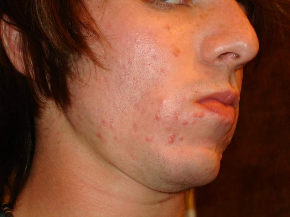 Right Side- 1 Month into Accutane...