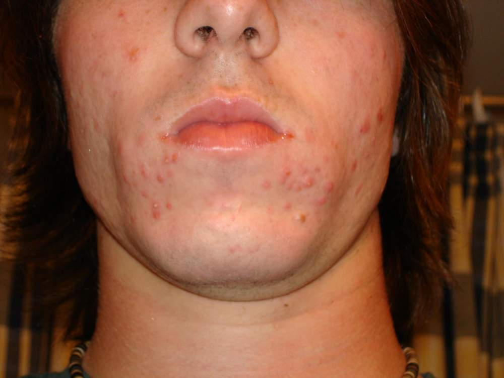 Cubs' Accutane Journey