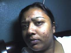 My face after acne!