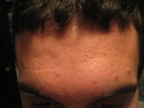 acne pic4.jpg