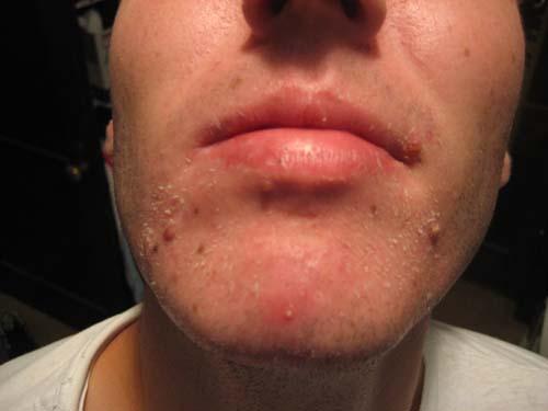 acne pic 2.jpg