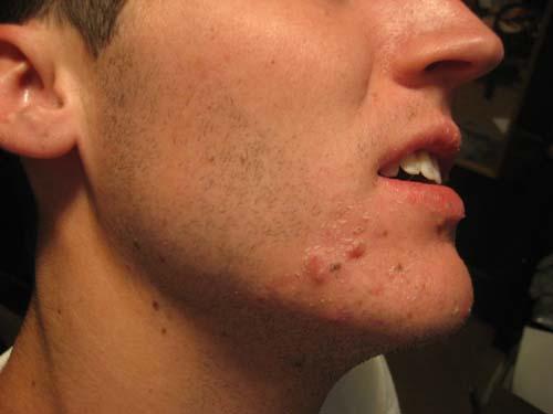 acne pic1.jpg