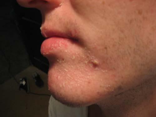 acne pic3.jpg
