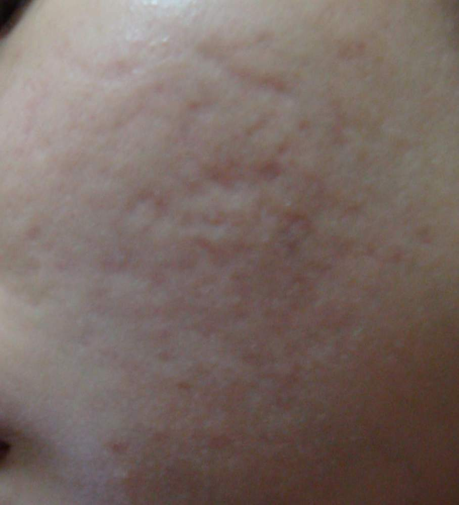 left cheek before treatment