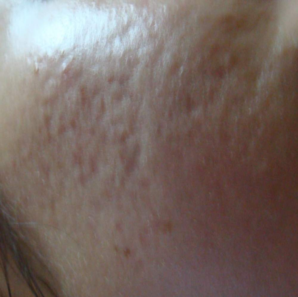 right cheek before treatment