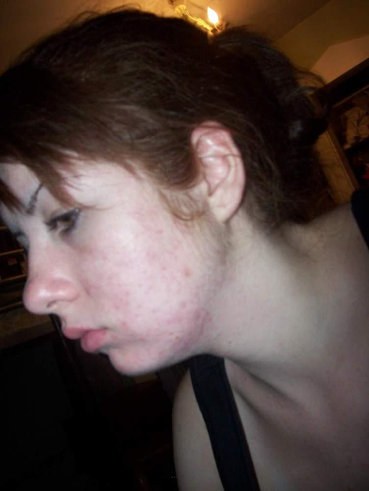 Nasty scars=[