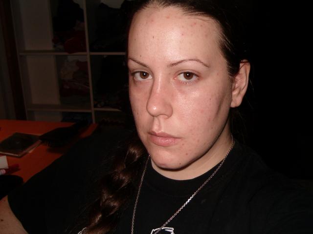 Day 8 on DKR (no makeup)