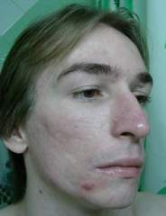Accutane is almost finished