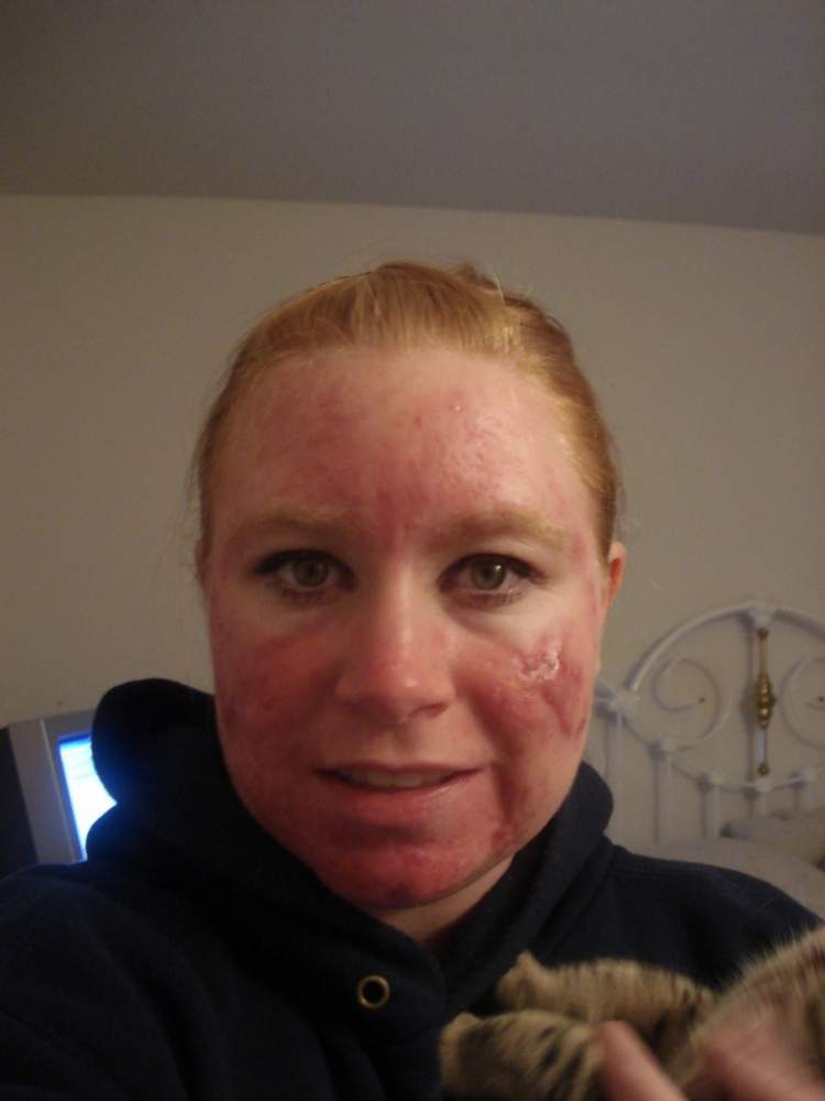 On Accutane