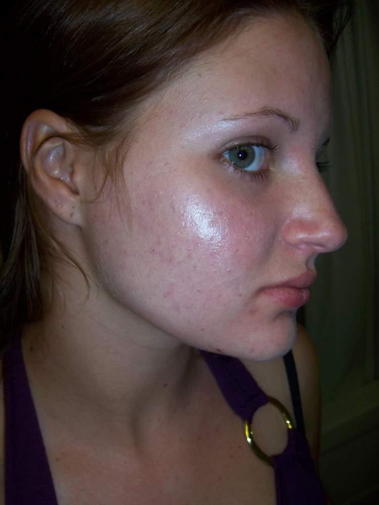 o acne :(