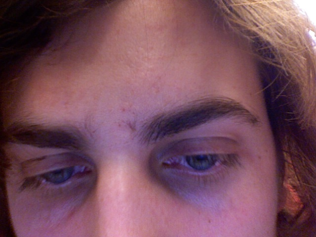 Scar near my eyebrow