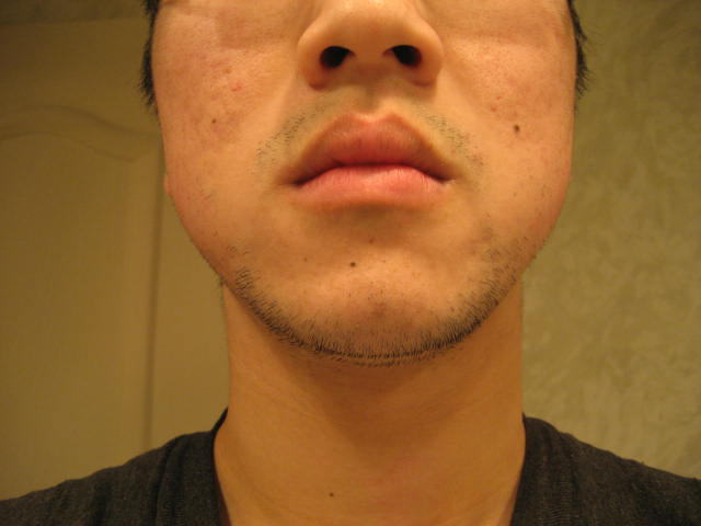 FInished accutane for about 1 year now