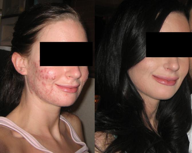 Accutane Before & After