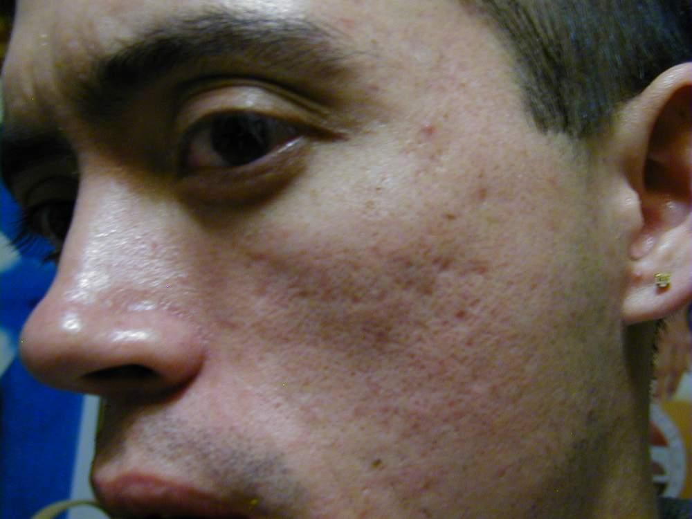 left side scars