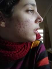 scars_1.jpg