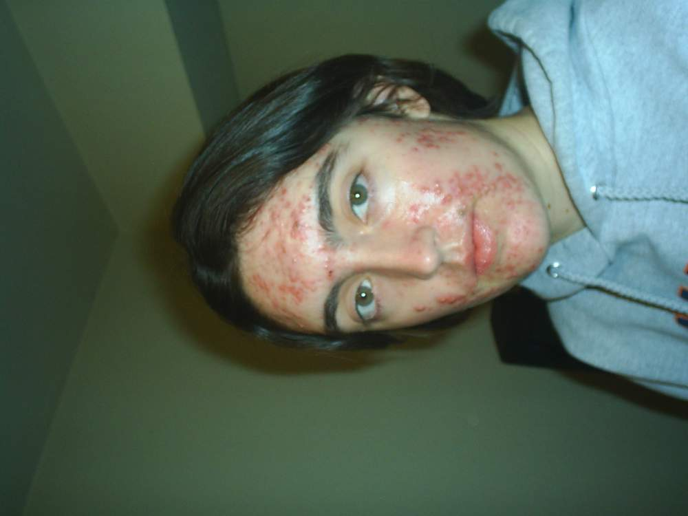 Right before I started Accutane